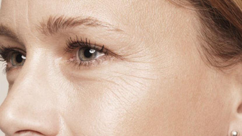 Arthur Ludlage - Kraaienpootjes verminderen met botox
