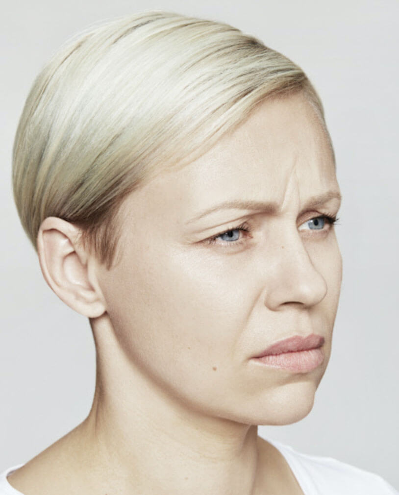 Arthur Ludlage - fronsrimpel verminderen met botox