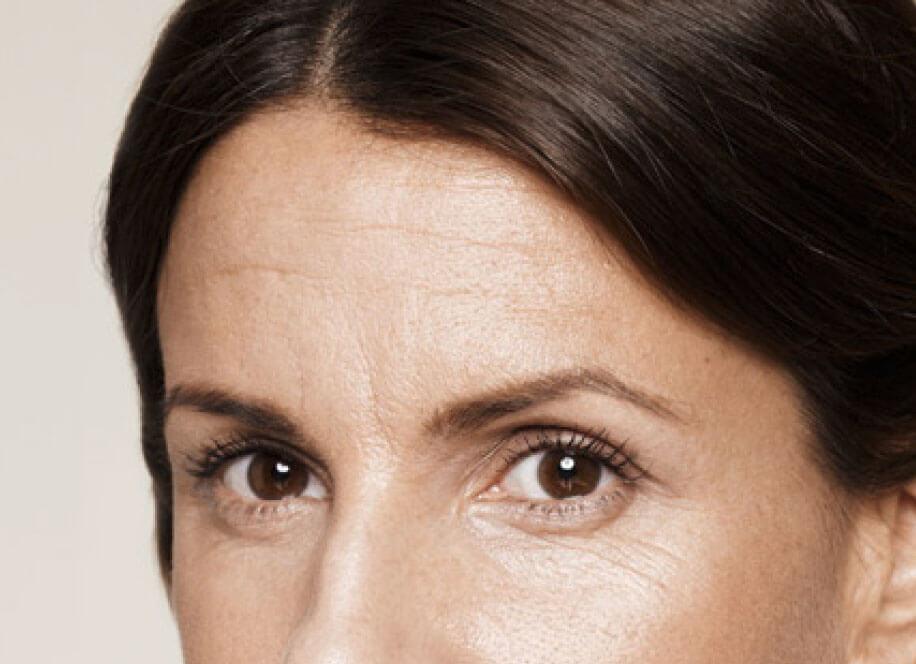 Arthur Ludlage - Voorhoofdrimpels verwijderen botox